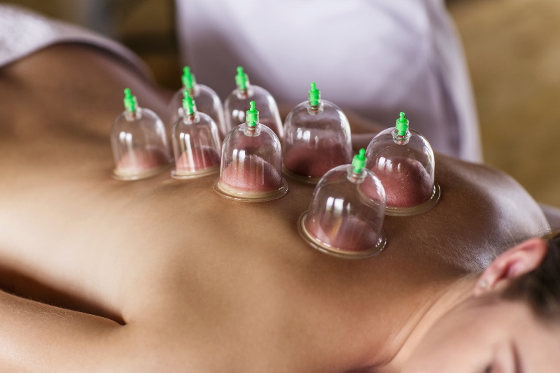 Olympians shine the light on the benefits of cupping